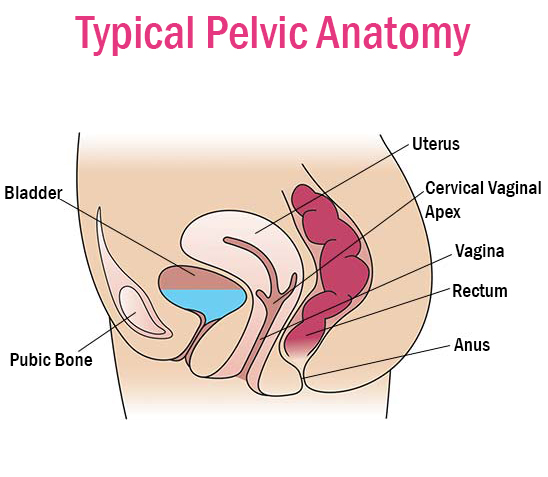 Prolapse Female Pelvic Health Center